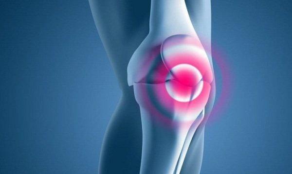 Хондромаляция коленного сустава что это такое