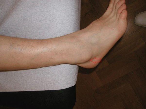 Как появляется косточка на ноге
