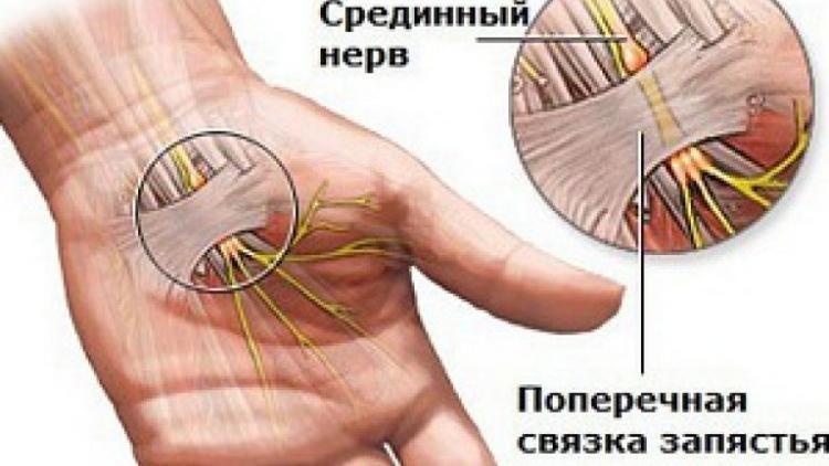 Что делать при боли в руке