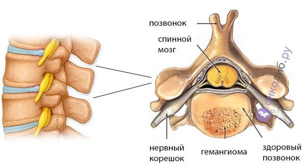 Обнаружили большую доброкачественную опухоль-мангиома на тазобедренном суставе после ренг лечение при синовите коленного сустава народными средствами