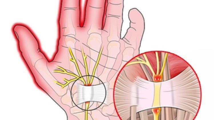 Спайки на суставах мышцах кисти как разорвать противовоспалительные препараты при растяжении сухожилий голеностопного сустава