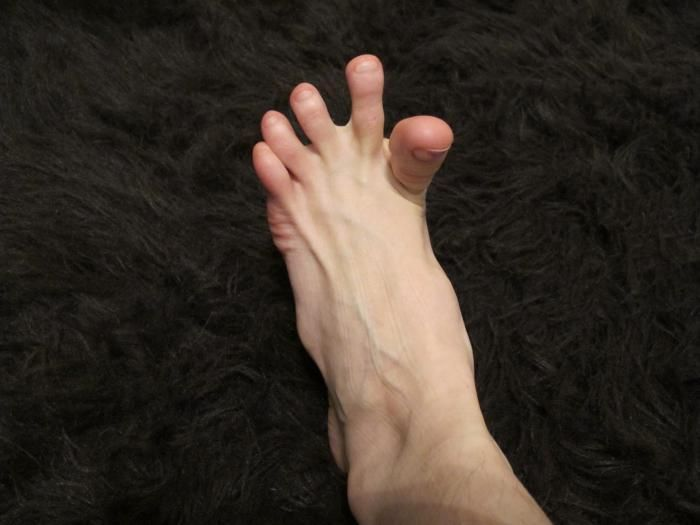 Ноги сводит судороги лечение
