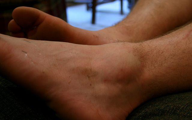 Опухоль на ноге выше колена и отечность что делать и как лечить