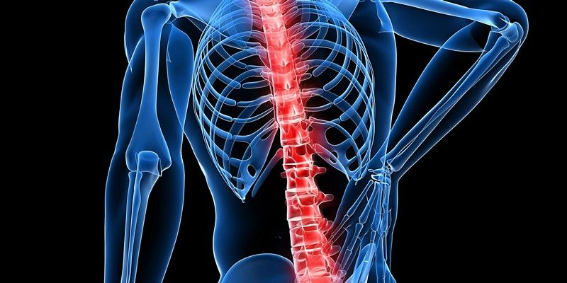 Что такое невралгия спины