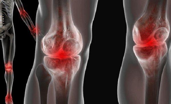 Что такое остеофиты коленного сустава и как от них избавиться