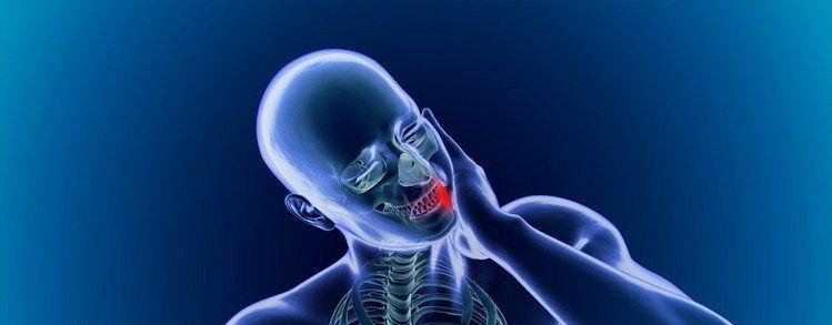 Первые признаки некроза костной ткани челюсти