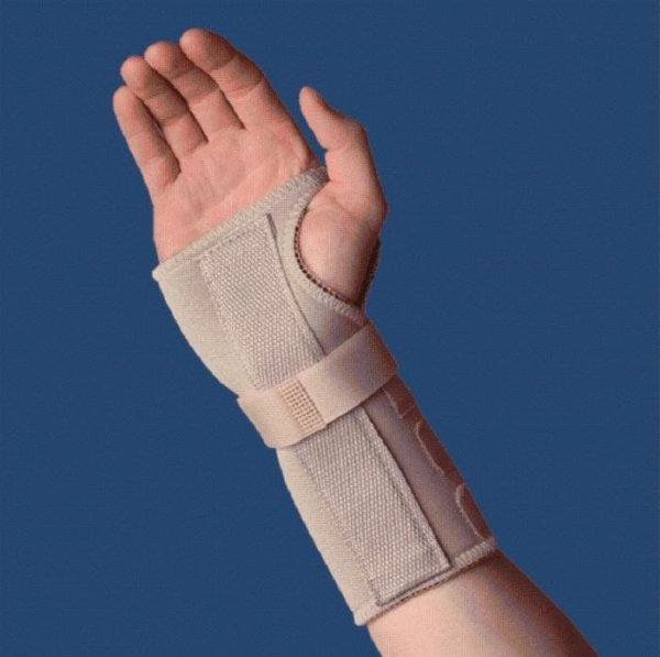 Что такое тендовагинит лучезапястного сустава и его лечение