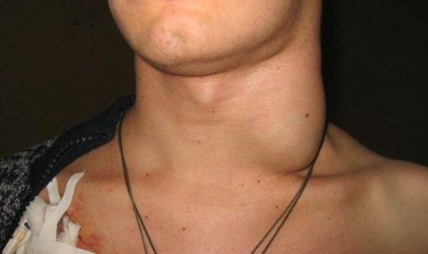 Как лечить лимфоузлы на шее у взрослого: список препаратов