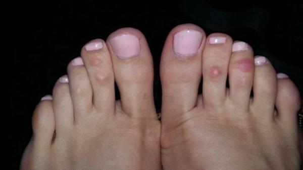 Как лечить шишки на пальцах ног и между пальцев