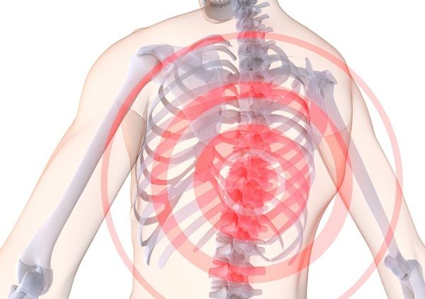 Опасности грудного остеохондроза