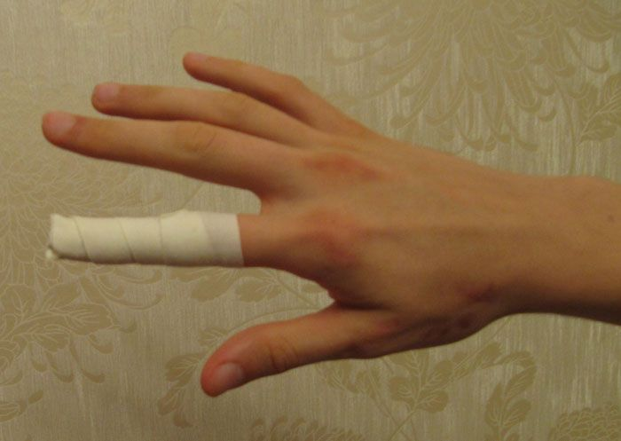 прищемил палец