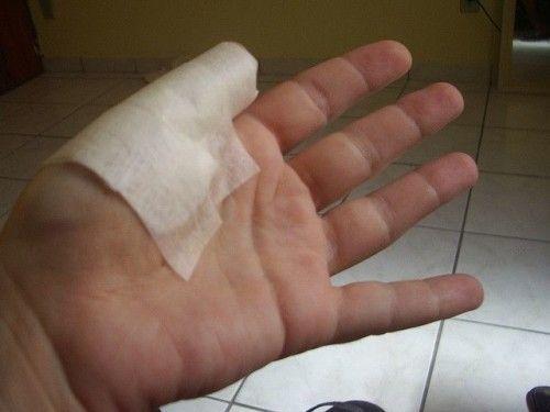 Как правильно перебинтовать палец