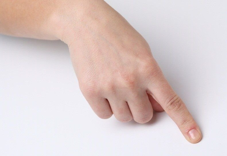 легко прищемил палец