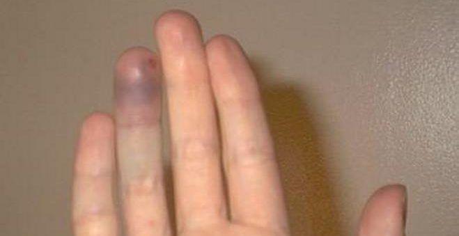 средний ушиб пальца