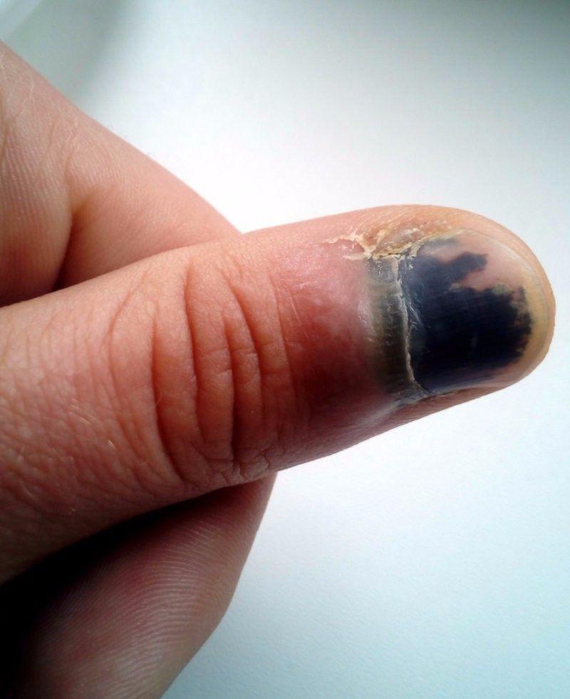 ущемленный палец