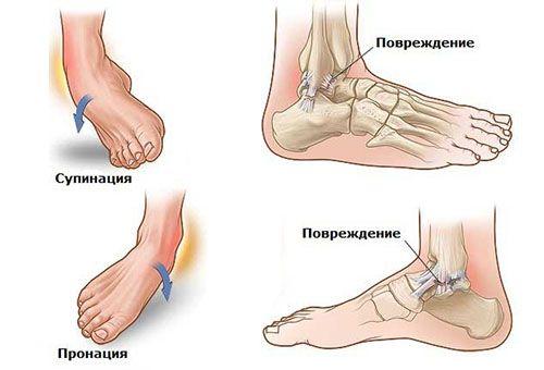 виды растяжений ноги