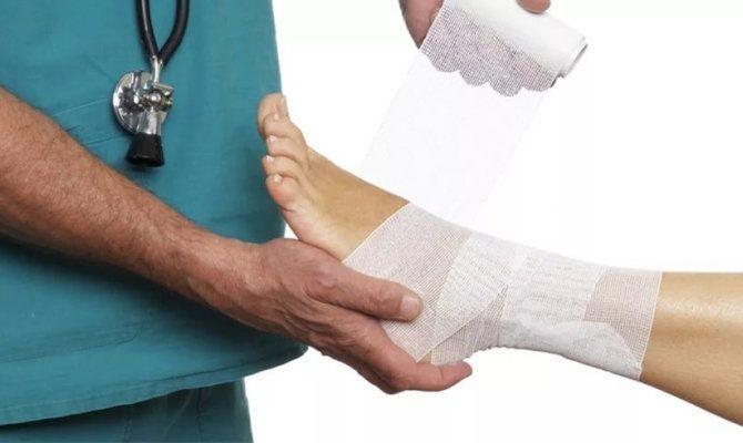 помощь врача при растяжении