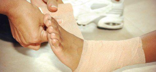 перебинтовывание ноги
