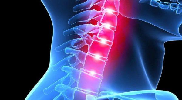 Выполнение упражнений от боли в шее лечебная гимнастика