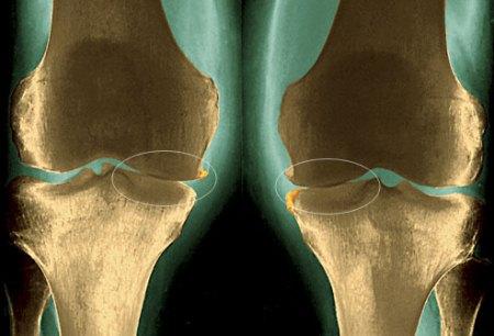 Травматическая артропатия коленного сустава