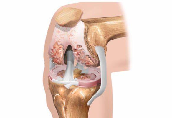 Разрушение суставов в раннем возрасте генетическое гнойное заболевание костей и суставов реферат