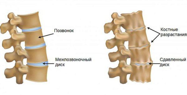 Остеохондроз артроз шейного отдела позвоночника лечение