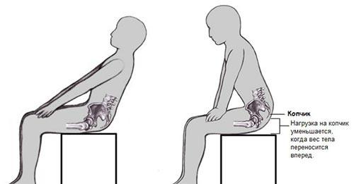 Боль в копчике при вставании со стула