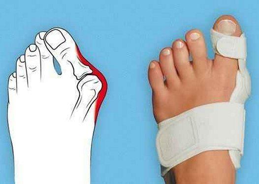 Боль в косточке большого пальца ноги причины и лечение
