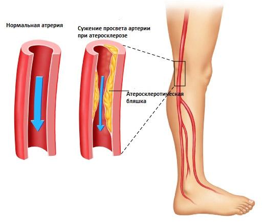 Болят ноги от бедра до стопы (правая или левая), причины ноющей боли