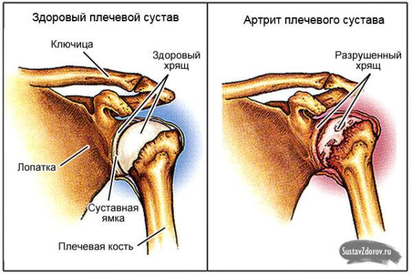 Болит плечевой сустав левой руки при ее поднятии водочный компресс при бурсите коленного сустава