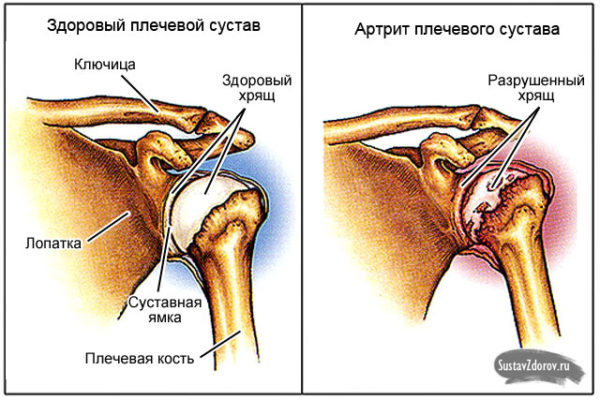 суставы стопы анатомия