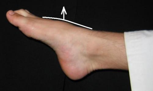 Боль в подъеме стопы при ходьбе: причины и лечение