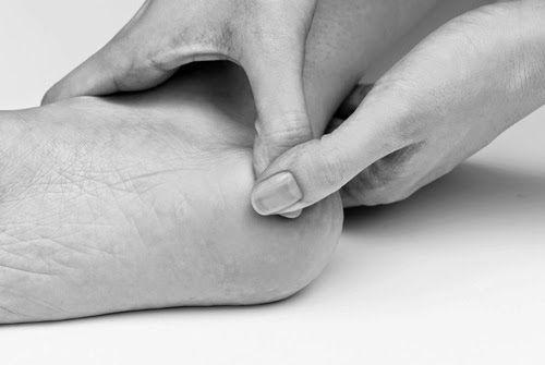 Боль в пятке сбоку, с внутренней стороны: как устранить боли