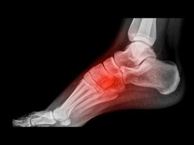 Боль в ступне при наступании на ногу