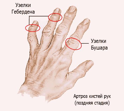 Деформация сустава указательного пальца лечение коленных суставов запорожье