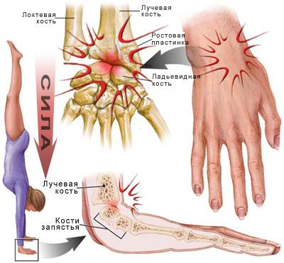 Сустав кисти боль ревматология лечение профилактика болезни суставов