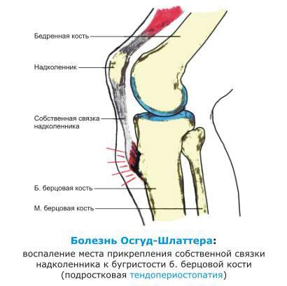 болевой синдром дисфункции височно-нижнечелюстного сустава