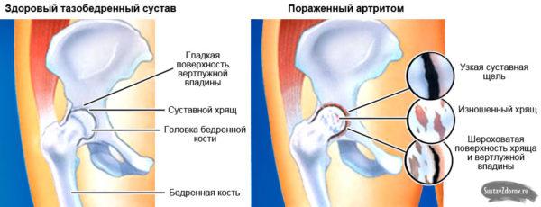 Заболевание тазо бедренных суставов лазерная терапия лучезапястного сустава