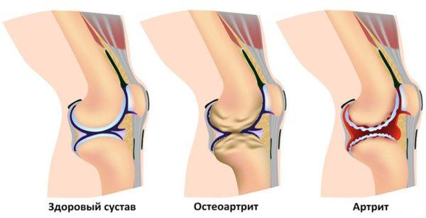 Коленные суставы хрустят и болят делают ли мрт если есть отек суставов