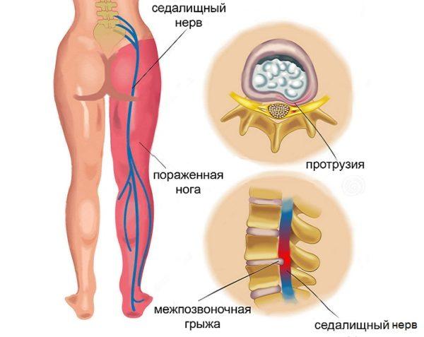 Боль в спине ниже поясницы у женщин