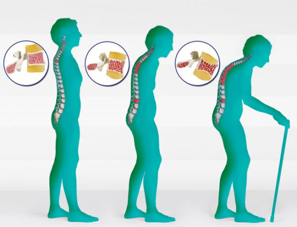 Бывают ли боли в костях при остеопорозе: как снять боль