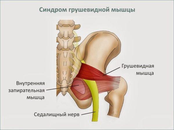 Почему болят колени после бега, тренировки, приседаний, что с этим делать