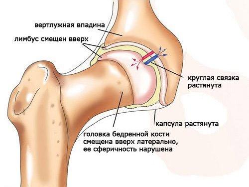 Вывих тазобедренного сустава у взрослых лечение видео у щенка вывернуты задние скакательные суставы