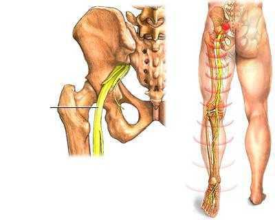 Сильные боли в области тазобедренного сустава туберкулёз тазобедренного сустава рентгеновские снимки