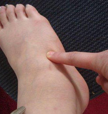 Болит стопа посередине с внутренней стороны