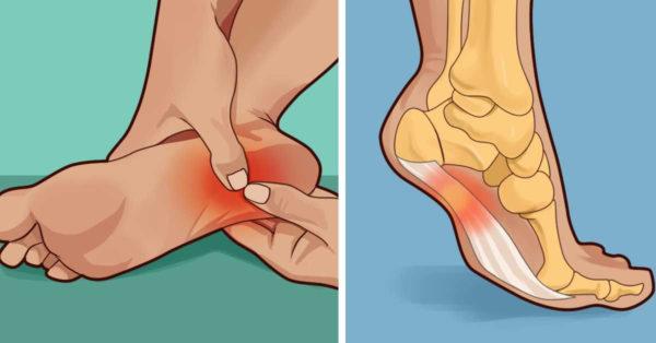 Топ-6 вправ, які позбавлять Вас від болю в ногах і ступнях!!!