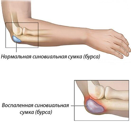 Бурсит локтевого сустава у спортсменов боль в локтевом суставе причины диагноз