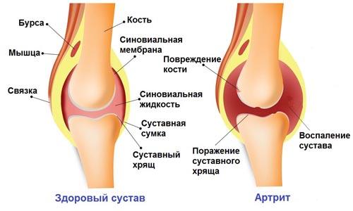 При воспалении суставов ограничители суставов orto москва
