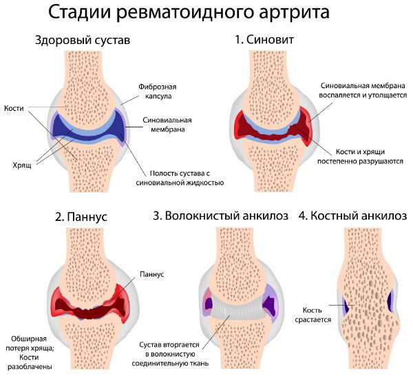 Ревматоидный артрит лечится или нет
