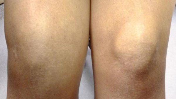 Что делать если опухло колено и болит народные средства боли в суставах температура 38